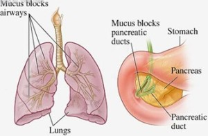 cystic fibrosis behandeling