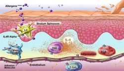 Eczeembehandeling in de zoutkamer