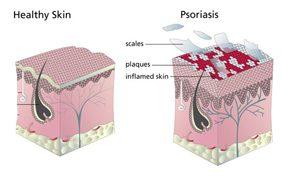 Psoriasis ervaring van Greet met halotherapie