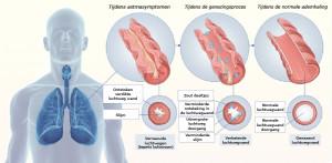 Ziekenhuis voorschrijft zware medicijnen bij astma longziekte