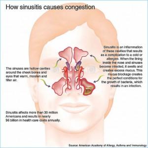 Halotherapie helpt bij verstopte neus