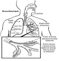 HaloClinic_Halotherapie_bronchiëctasieën_1