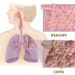 HaloClinic_Halotherapie_COPD_1