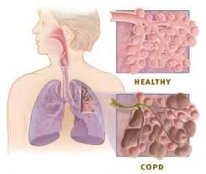 Rokers longen, COPD en halotherapie