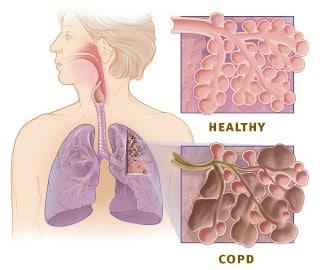 COPD en halotherapie
