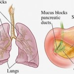 HaloClinic_Halotherapie_Cystic-fibrosis_1