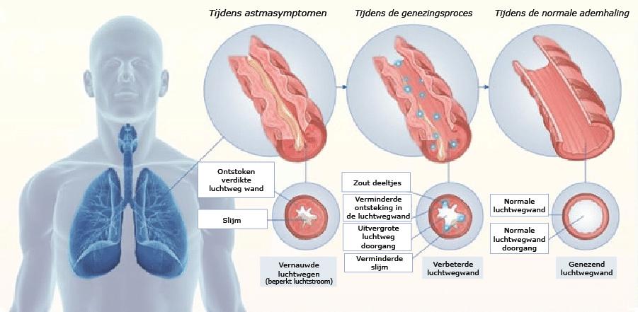 Astma - Medicatievrij astma behandelen| HaloClinic Nederland