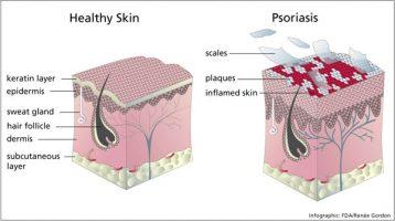 Psoriasis behandeling, Huid aandoening