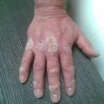 De helende werking van zout bij Psoriasis