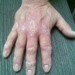 George Dudink (61) heeft waarschijnlijk al een jaar of dertig psoriasis